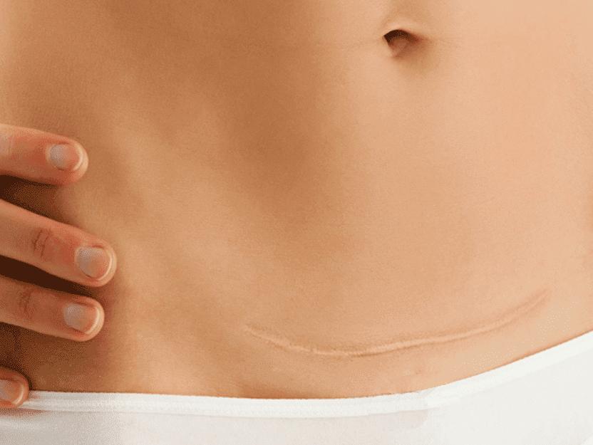 betaterapia previne queloides